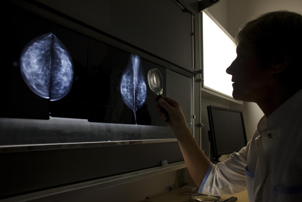 CSMD, mammographie