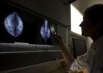 CSMD, mammographie (Fondation Oeuvre de la Croix Saint-Simon)